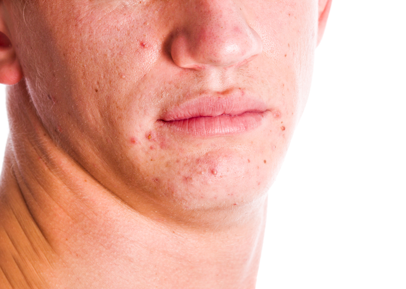 Acne Facts & Care